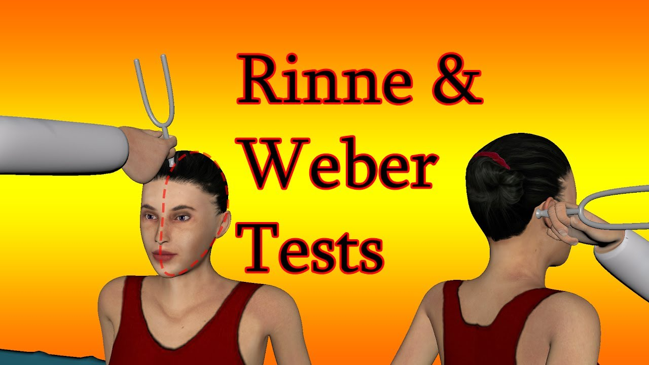 rinne and weber test