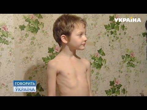 У моего сына аномалия (полный выпуск) | Говорить Україна