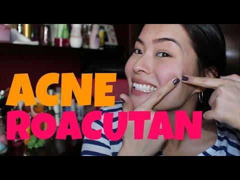 ACNE | ROACUTAN - Minha Experiência com a Isotretinoína