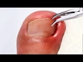 Ingrown Nail Removal by Dr. ER!