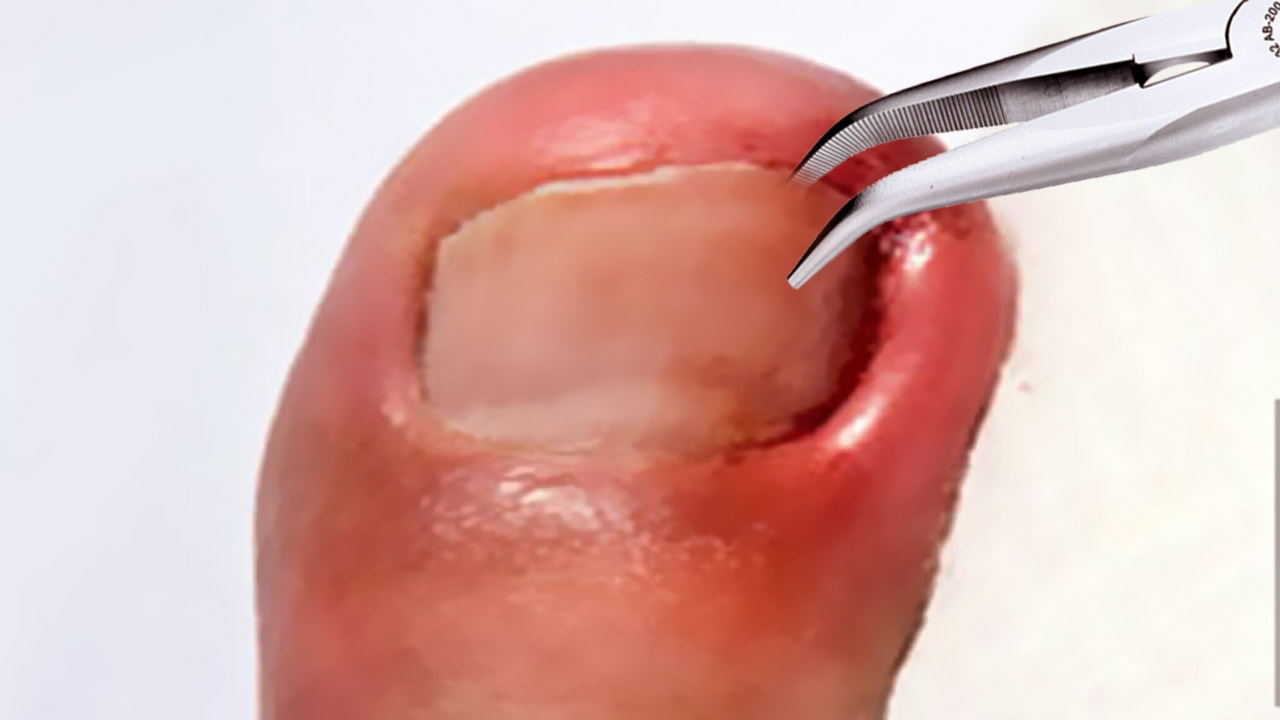 Ingrown Nail Removal by Dr. ER! - YouTube