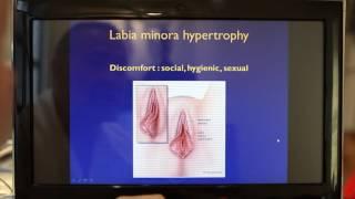 Labioplastie : l'opération de réduction des petites lèvres 1
