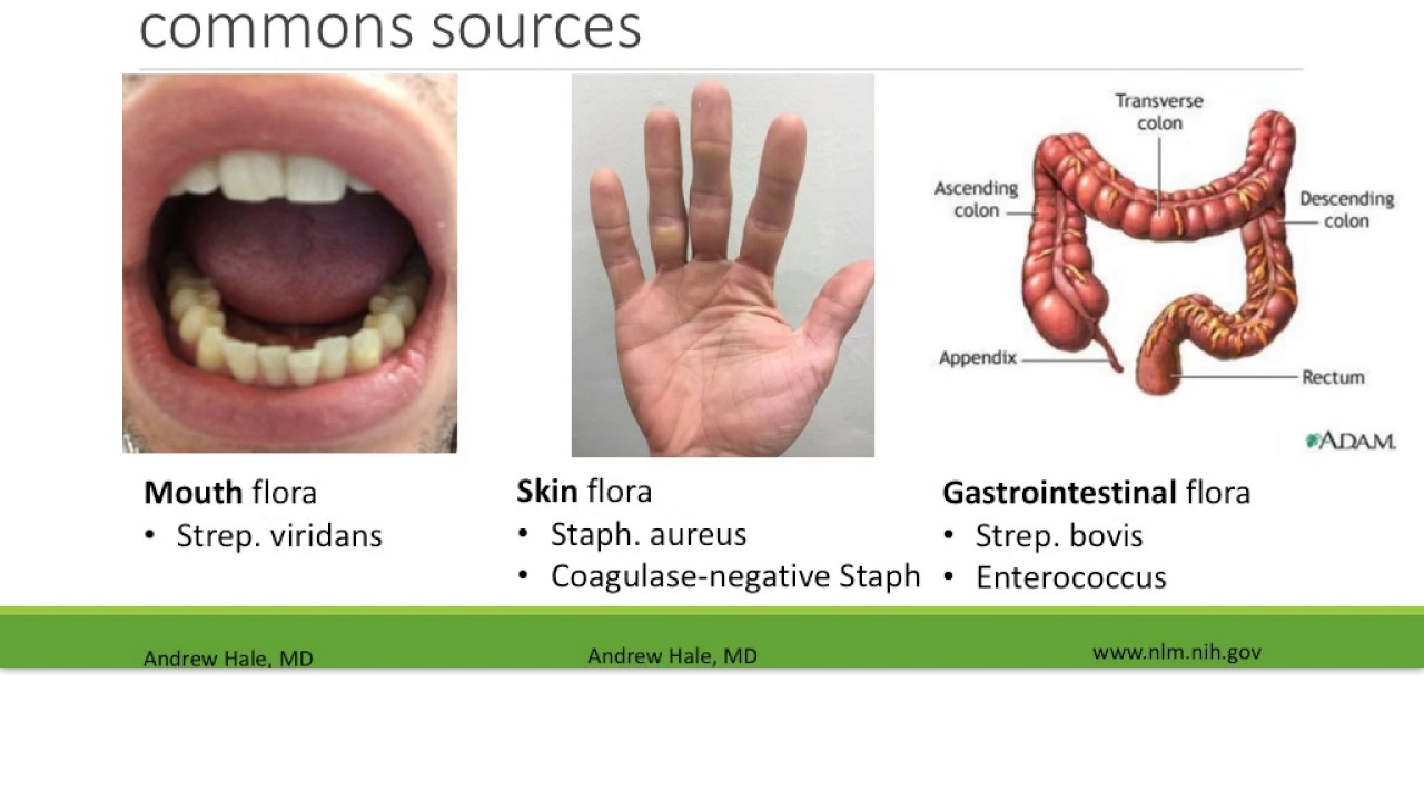Introduction to Infectious Endocarditis - YouTube