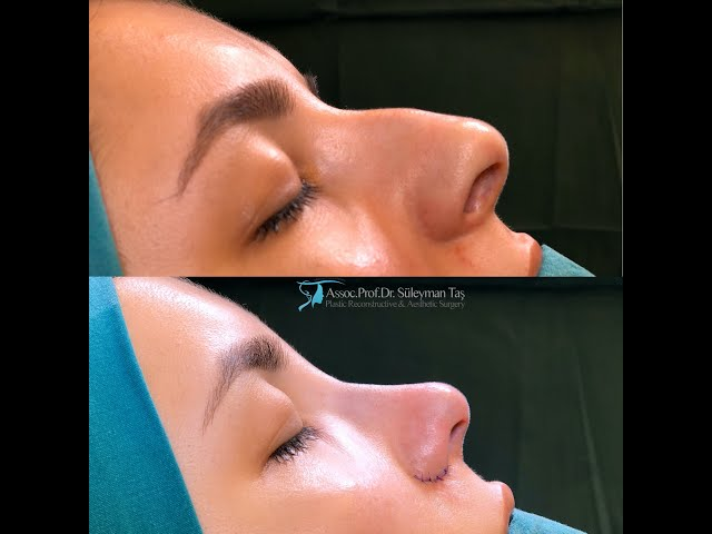 Nostril Reduction Surgery Before After
