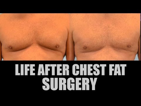 Life after chest fat/gyno surgery