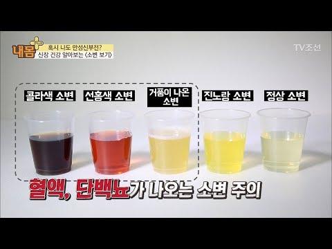 '소변의 색'으로 신장 건강을 알아보자 [내 몸 플러스] 82회 20171203