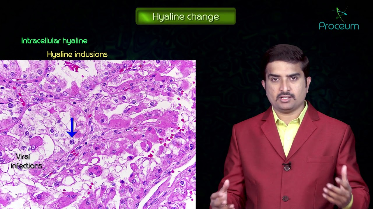General Pathology Lectures