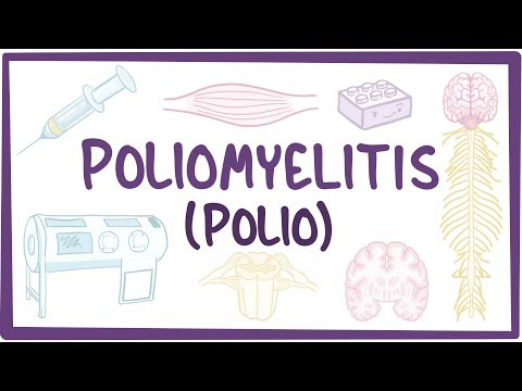 Poliomyelitis - causes, symptoms, diagnosis, treatment, pathology