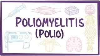 poliomyelitis-causes-symptoms-diagnosis-treatment-pathology