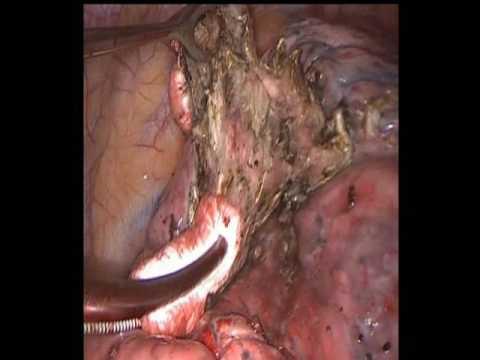 Неоднократное удаление метастазов легкого. Repeated metastasectomy lungs.