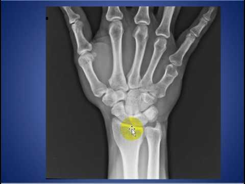 radiology round case short metacarpal bone