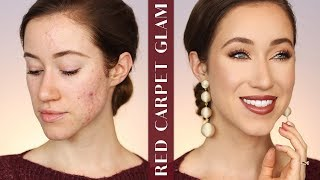 FLAWLESS DRUGSTORE MAKEUP FOR ACNE