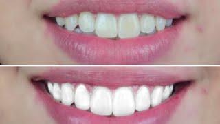 How To Make Your Teeth Whiter Vegan Cruelty Free Teeth