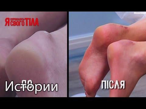Опухла и болит нога в районе щиколотки после укуса