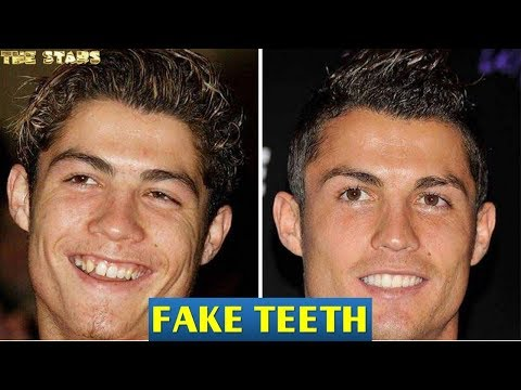 30+ Celebrities With Fake Teeth  �
