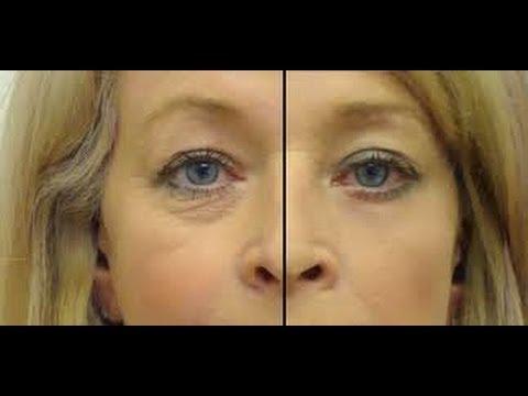 Las causas esotéricas las bolsas en los ojos