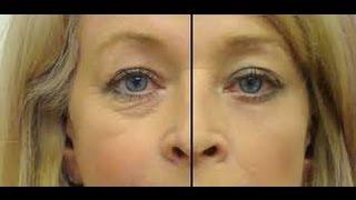 Haz tu serum de ojos para eliminar arrugas, ojeras y bolsas- Anastassia Sfeir