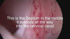 Uterine Septum Surgery by Dr. Andrea Vidali MD