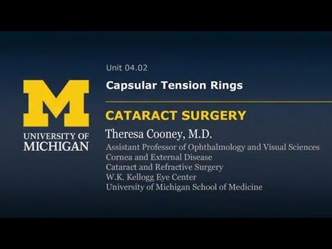 Capsular Tension RIngs Cataract surgery