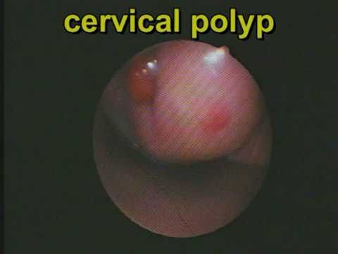 recurrence of polyps of the cervix. radical removal of polyps, Skeleton