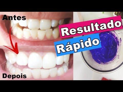 Como Clarear Os Dentes Em Casa Com Violeta Genciana Youtube