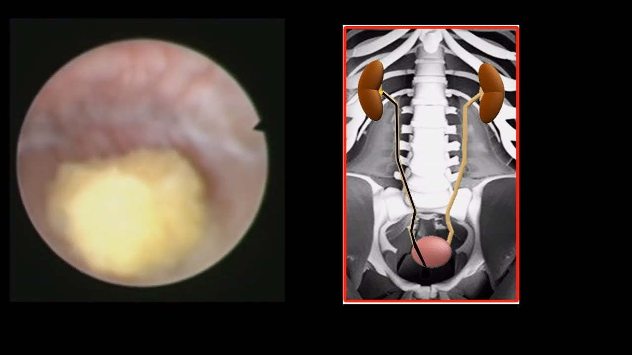 How To Remove A Kidney Stone Live Patient Video Youtube