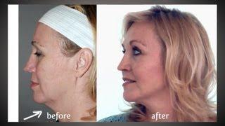 Y LIFT ® 2013 - Deborah's Testimonial | Instant, Non Surgical Facelift