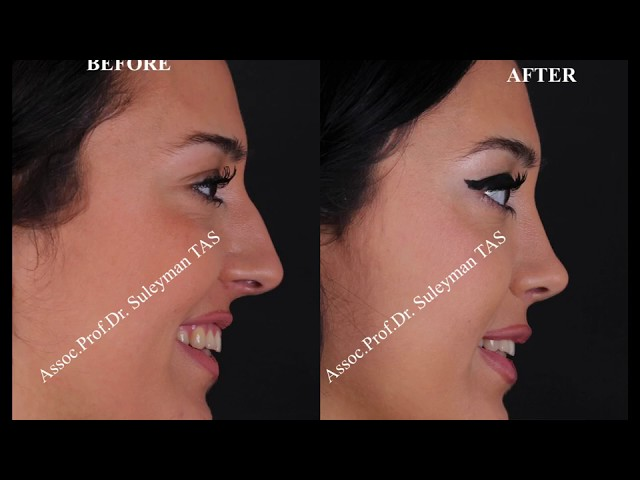 Closed Atraumatic Rhinoplasty