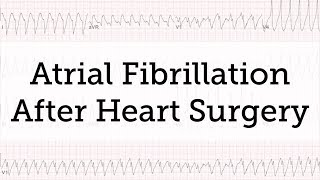 Https://www.heart-valve-surgery.com - learn important facts about atrial fibrillation (afib) after heart surgery from dr. marc gillinov, chair of cardiac sur...