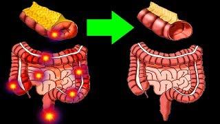 Остановите старение Кишечника Как сохранить Здоровье кишечника до Старости