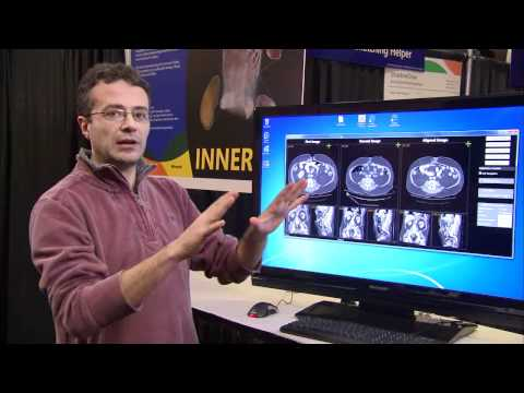 TechFest 2011: InnerEye: Visual Recognition in the Hospital