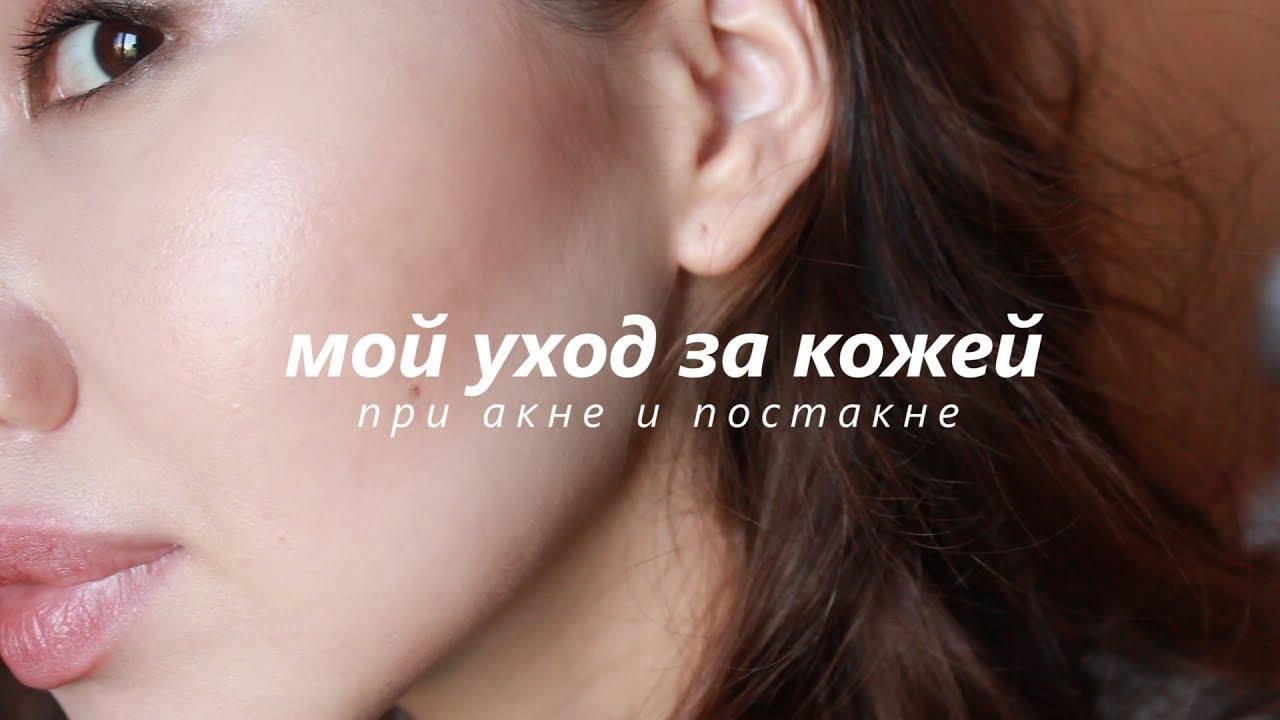 АКНЕ / ПОСТАКНЕ: САМЫЙ ПРОСТОЙ Макияж :) + Советы - YouTube | 720x1280