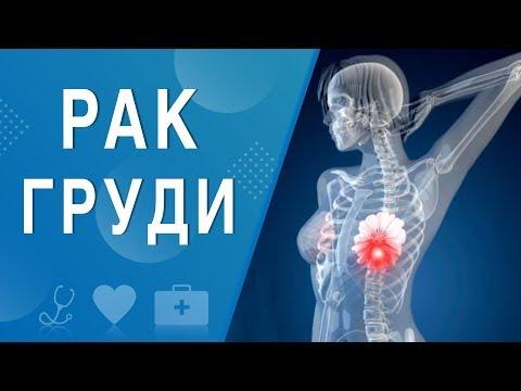 Рак груди. На здоровье 15.03.2020