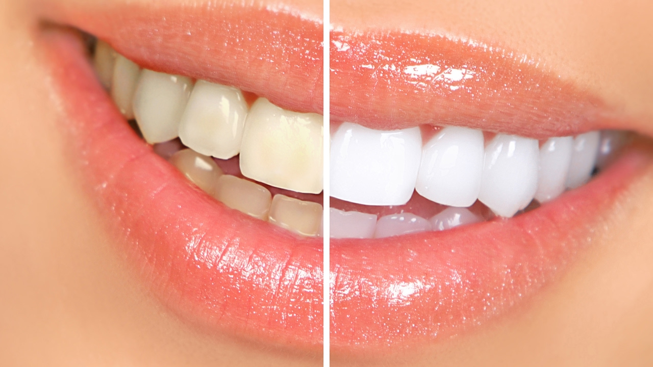 How To Whiten Teeth With Braces How To Whiten Teeth At