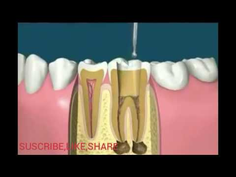 Dental Implants - New modern Procedures & Technology - Cheap & lLow Cost Implants - Modesto Dentist