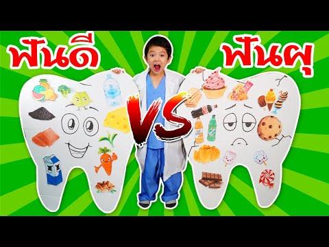 สกายเลอร์   ฟันดี vs ฟันผุ 🧀🥦🍓สนุกไปกับคุณหมอฟัน สุดป่วน Good Teeth vs Bad Teeth Kids Activity