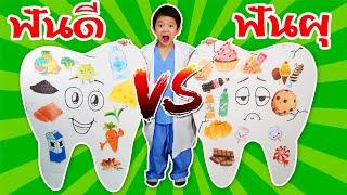 สกายเลอร์ | ฟันดี vs ฟันผุ 🧀🥦🍓สนุกไปกับคุณหมอฟัน สุดป่วน Good Teeth vs Bad Teeth