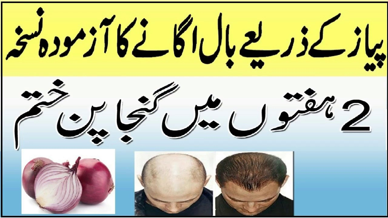 Pyaz se Ganjapan ka ilaj - Hair Fall Solution | Onion Juice for Hair Growth
