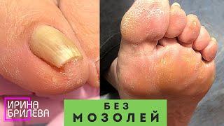 ПЕДИКЮР Чтобы не болели пальцы и легче было ходить Убираем подногтевые мозоли Подробное видео