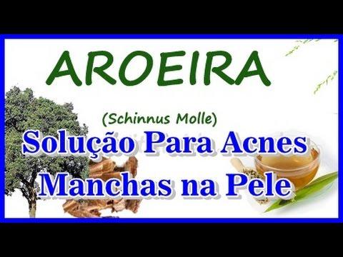Manchas e Acnes - Soluçao de Aroeira