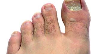وصفات لعلاج فطريات القدم والفطريات بين أصابع القدم