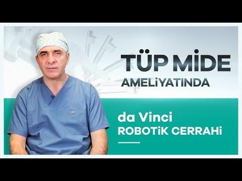 Tüp Mide Ameliyatında ''da Vinci Robotik Cerrahi'' Yöntemi - Prof. Dr. Abdülkadir Bedirli
