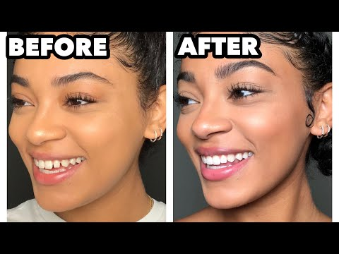 HOW I CLOSED THE GAPS IN MY TEETH! Quick & Easy | Jasmeannnn