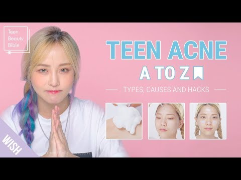 hqdefault - Natural Cure For Teenage Acne
