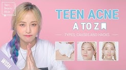 hqdefault - Teenage Acne Causes Cures