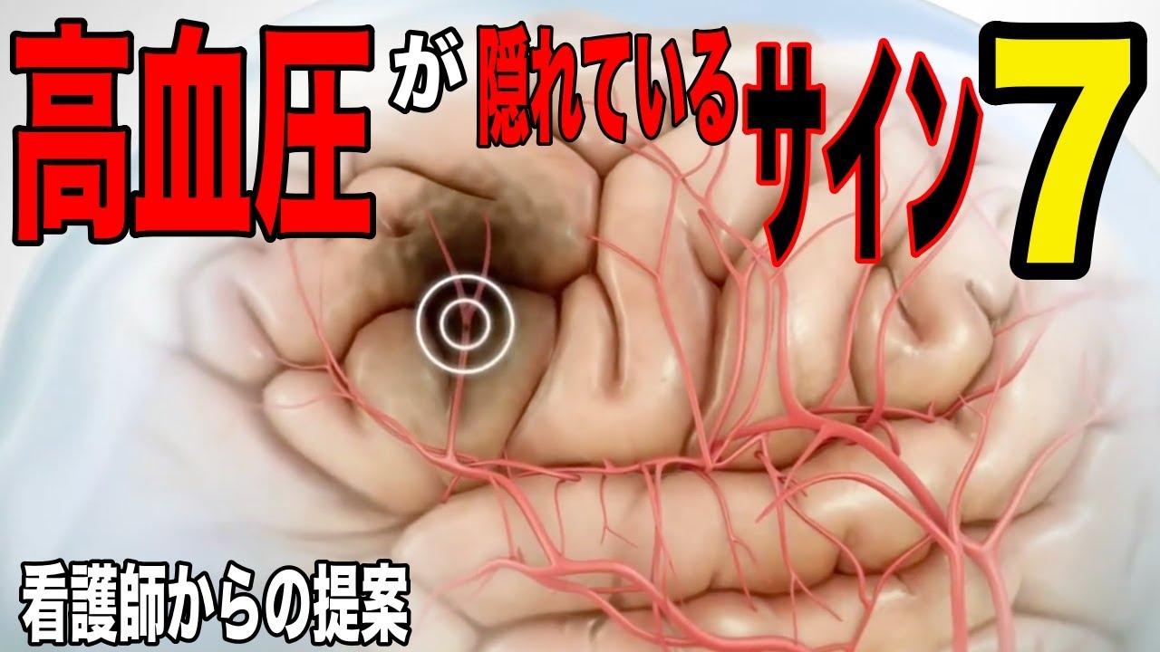 「くも膜下出血が…⁉︎」無視すると怖い…高血圧が隠れている兆候7選!看護師からの提案!【雑パラ】