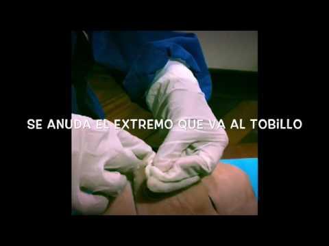 tratamentul cu lipitori varicoză pe picioare medicamente folclorice în vene varicoase ale picioarelor