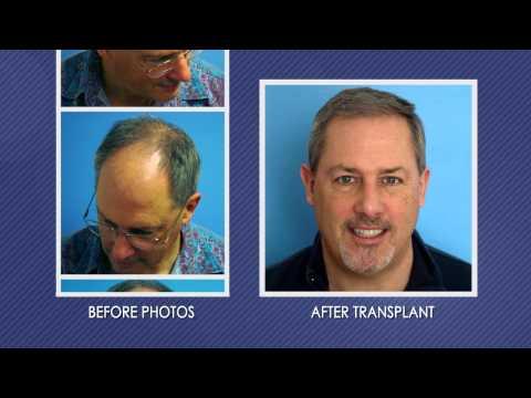 Hair Transplant Patient Testimonial - Dr. Scot Boden - HairTransplantCT.com