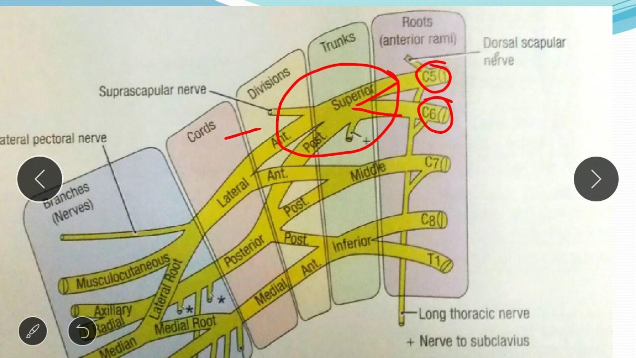 Erbs palsy, Brachial plexus injuries by Xplained Anatomy-part 1 ...