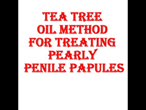 Tea tree oil pearly penile papules